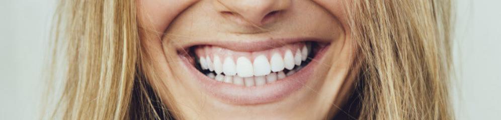 solliciteren glimlach